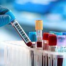 Diagnose der Hashimoto Thyreoiditis – was gilt es zu beachten   Hashimoto Info.de