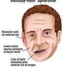 RAMSAY HUNT SYNDROME :  The varicella zoster virus that causes Ramsay Hunt syndrome is the same virus that causes chickenpox (varicella) and shingles.