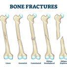 FREE bone fractures vector illustration