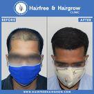 high-density natural hairline hair transplant