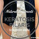 Natural Treatments for Keratosis Pilaris Chicken Skin