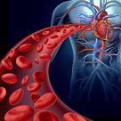 Aneurysms in Spleen Artery Underreported in Gaucher Patients, Case...