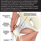 Finding an effective treatment for Snapping Hip Syndrome