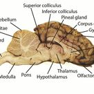 Sheep Brain Dissection Project Guide | HST Learning Center
