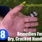 Dry Cracked Hands