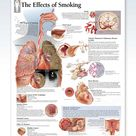 The Effects of Smoking Chart 22x28