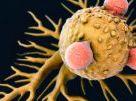 New Technology Makes Cancer Tumors Eliminate Themselves