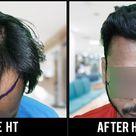 Hair Transplant Result | Hair Transplant in Pune