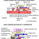 Abdomen - Vessels - Arteries - Abdominal aorta relations