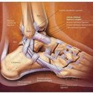 High Ankle Sprain vs. Ankle Sprain: What's the Difference?