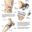 Knee Replacement Surgery Pain by drldf