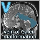 vein of Galen malformation