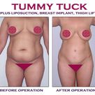 Tummy Tuck Cosmetic Surgery, Fat Loss Procedure, Liposuction, Removal Excess Fat