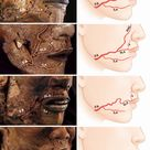 Topographic Anatomy of the Superior Labial Artery for Dermal Filler Injection | Semantic Scholar
