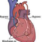 Bypass Surgery and Coronary Artery Bypass Grafting | Heart Care | Intermountain Healthcare