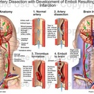 Vertebral Artery Dissection with Development of Emboli Resulting in Cerebral Infarction