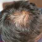 Cómo usar el aceite de coco para las canas, caída del pelo, caspa y evitar el cabello fino