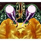 A1 Poster. Vision and the brain, MRI scan