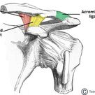 Is Your AC Joint Contributing to Your Ongoing Neck Pain ~ Centeno Schultz Clinic