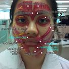 Muscles of Facial Expression & Facial Nerve (Clinical Session)