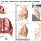 Left Lung Pneumothorax with Chest Tube Placement