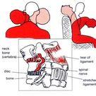 Latigazo cervical (cervical whiplash)