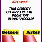 Clean Clogged Arteries: The Potion Which Pushes Fat From The Blood Vessels! #NaturalWeightLossCoffee
