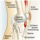 Schleimbeutelentzündung im Knie   Symptome, Diagnose & Behandlung