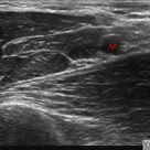 Ultrasound-Guided Axillary Brachial Plexus Block - NYSORA The New York School of Regional Anesthesia