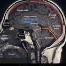 Well labelled MRI of the brain - StudyKorner