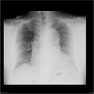 Thoracic aortic dissection - stanford type B | Radiology Case | Radiopaedia.org
