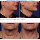 The Non-Surgical Neck Lift We All Want for Christmas #howtotightenlooseskinonneck