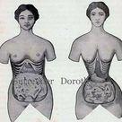 Corset Disfigurement Human Female Anatomy Vintage Medical Chart 1920s Illustration To Frame Black &