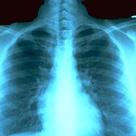 I'm a Radiology Major