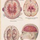 Vintage brain anatomy print. Brain disease art print. Brain | Etsy
