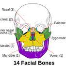 Facial bones : 14 bones include : 2 inferior nasal conchae , 1 vomer , 2 palatine , 2 maxillae , 2 zygomatic , 2 nasal 2 lacrimal , 1 mandible