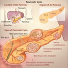 Types of Pancreatic Cysts