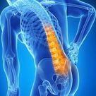 ISG-Blockade: Diese Übungen helfen gegen Rückenschmerzen - WELT