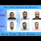 Best Hair Transplant Result of 3 Patients