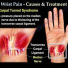 wrist pain,causes and treatment  PART I. Everything You Need To Know - Dr. Nabil Ebraheim
