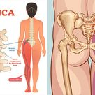 5 Stretches That May Help Relieve Sciatica and Lower Back Pain - WomenWorking