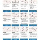Medical Basics - Medical Education Made Simple