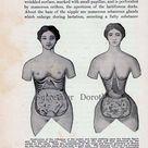Corset Disfigurement Human Female Anatomy Vintage Medical Chart 1920s Illustration To Frame Black & White