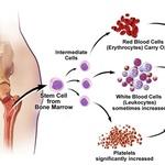 Mpn Support Mpns Myeloproliferative Neoplasms Voices Of Mpn Myeloproliferative Neoplasms Essential Thrombocythemia Awareness