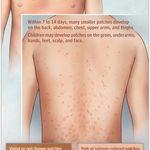 Pin On Pityrosporum Folliculitis Treatment