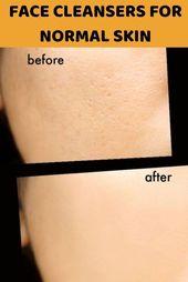 Suchen Sie nach dem besten Hautreiniger für Sie …
