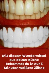 With this miracle cure from your kitchen you get whiter teeth in just 5 minutes