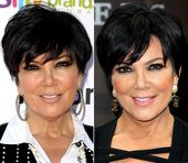 Kris Jenner Plastic Surgery Nose Job Before And after By Dr.Oz