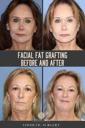 Due to skin laxity, a hollow cheek area and dissatisfaction with a previous face…
