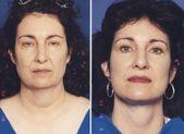 Vor und nach dem Facelifting Bilder von Dr. Mes Plastische Chirurgie in …